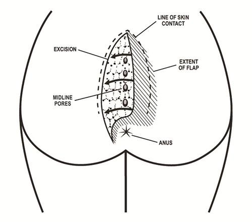 s lift procedure diagram master lift wiring diagram