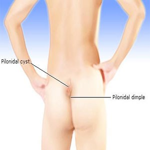 What Is Pilonidal Sinus?
