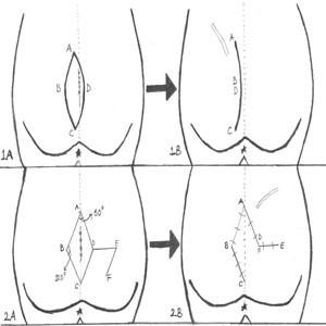 Limberg and Dufourmentel Flaps