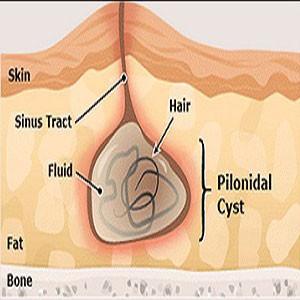 Unusual Sites of Pilonidal Sinus